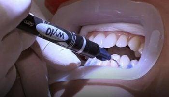 List Of 10 Best Teeth Whitening Clinics in Nairobi